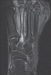 Unfortunately I don't have a image of my foot but this is a MRI of a stress fractured metatarsal